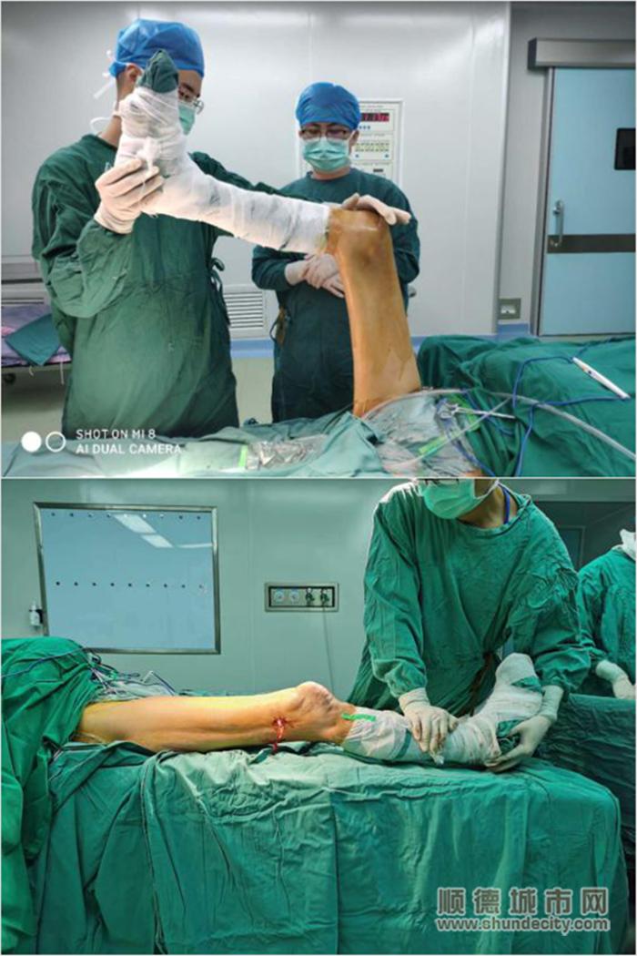 通过手术,张大伯的膝盖从明显挛缩变为可弯曲伸直。.png
